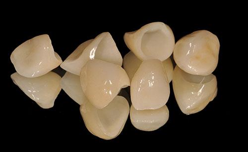 かぶせ物により歯の形と色を改善