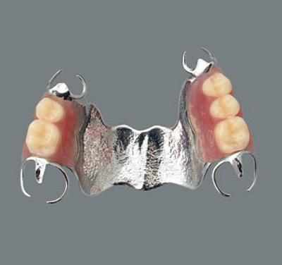 金属床部分床義歯
